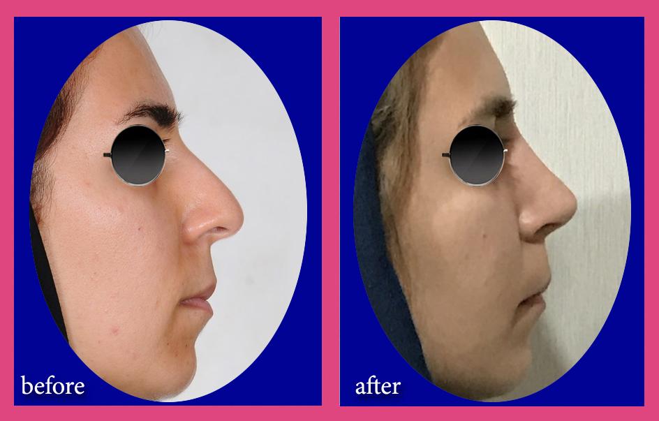 بینی استخوانی با کجی قابل توجه