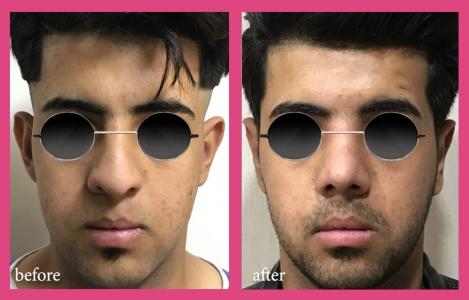 جراحی همزمان گوش و بینی گوشتی متوسط